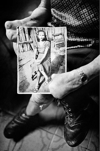 The Loudest Whisper – scars of leprosy in Brazil, by Anderson Schneider